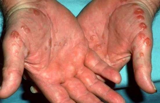 روشهای درمان اگزما